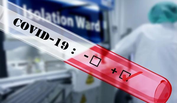 Mais 12 casos de Covid-19 são registrados em Palmeira