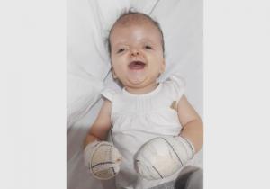 Marcella recupera-se de mais uma fase cirúrgica em SP